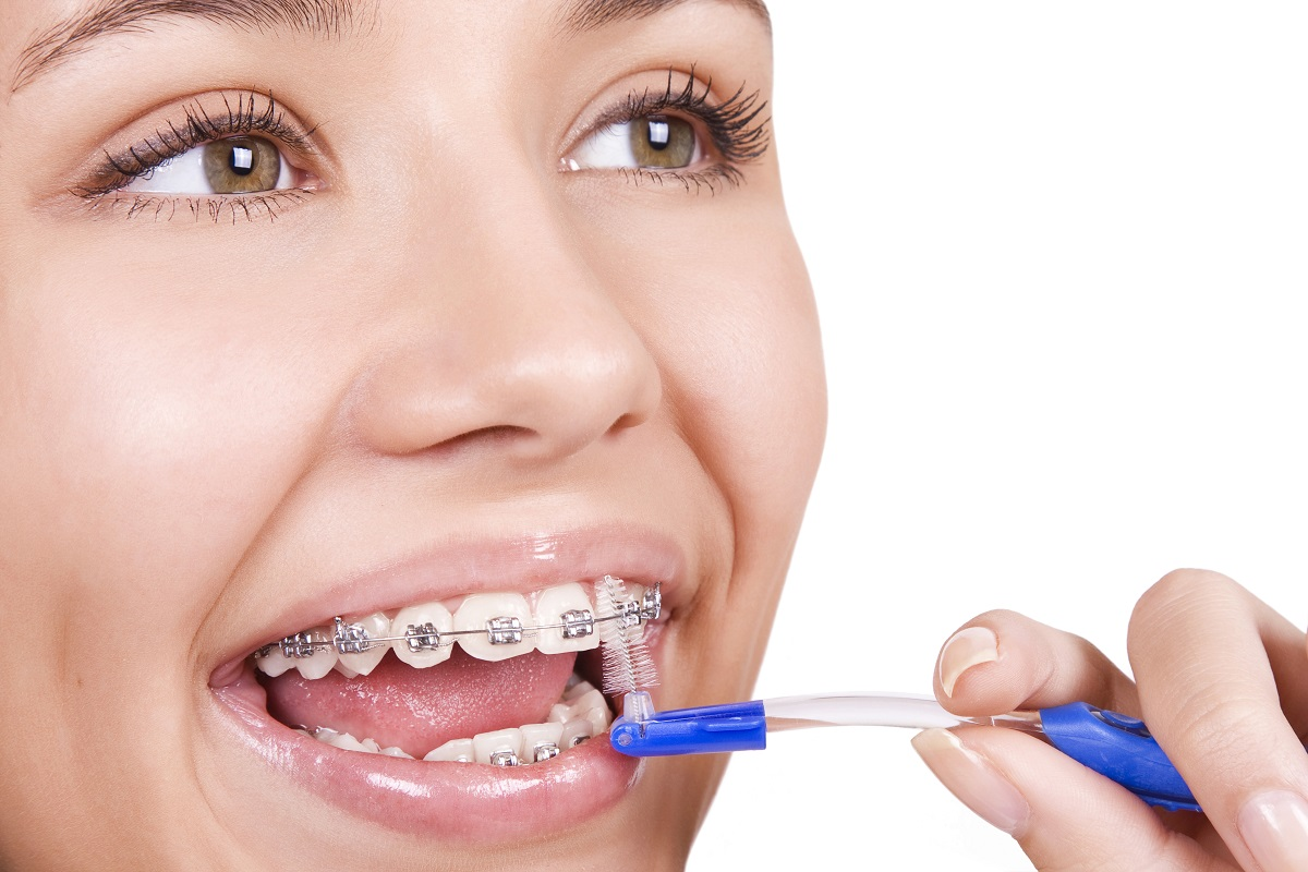 Woman showing her braces