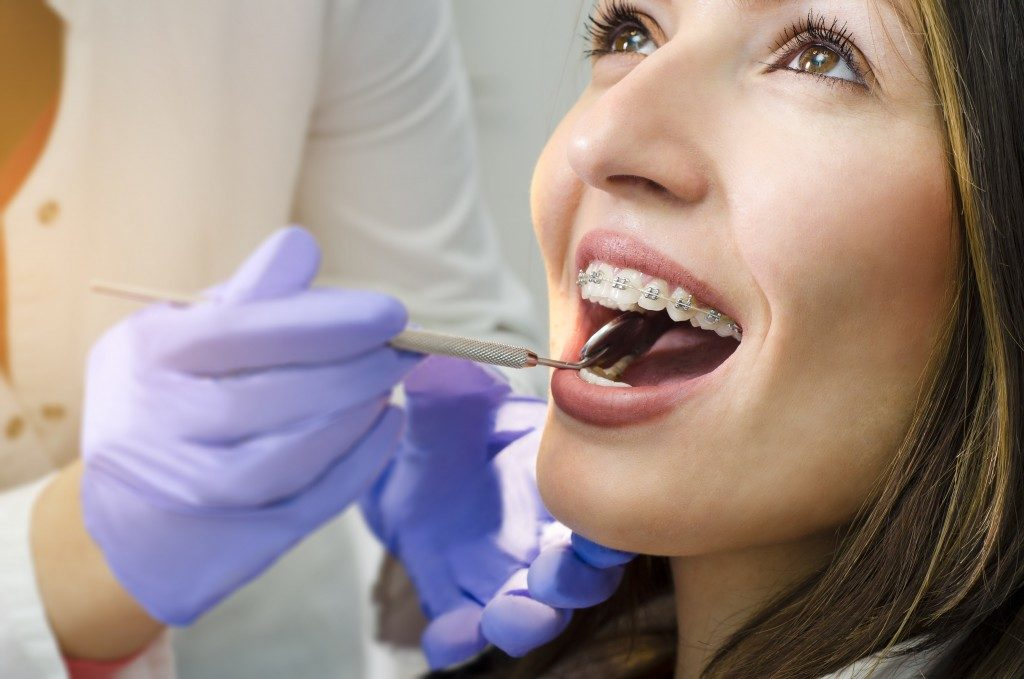 Closeup of girl on dental braces check up