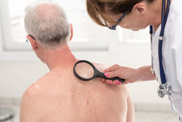 doctor inspecting the skin of a man