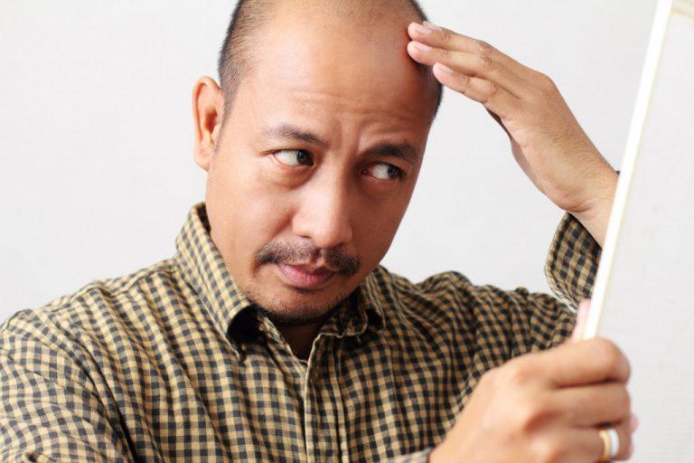 man going bald